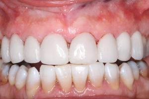 After Tooth Whitening Treatment